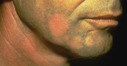 Alopecia areata of the eyelash
