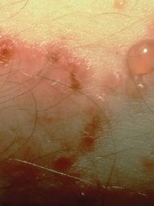 Linear IgA bullous disease