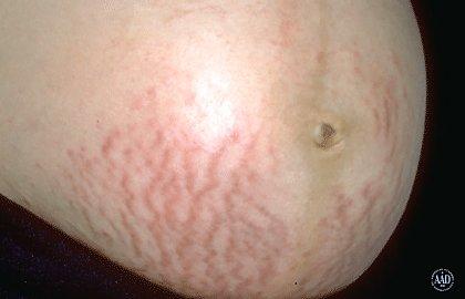 scars-stretch-marks.jpg