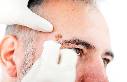 skin-cancer-exam-on-senior-gentleman.jpg